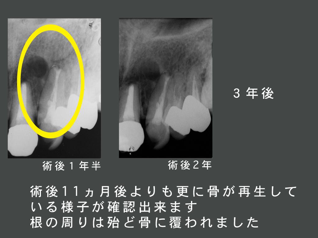 歯根端切除_a0140882_23383383.jpg