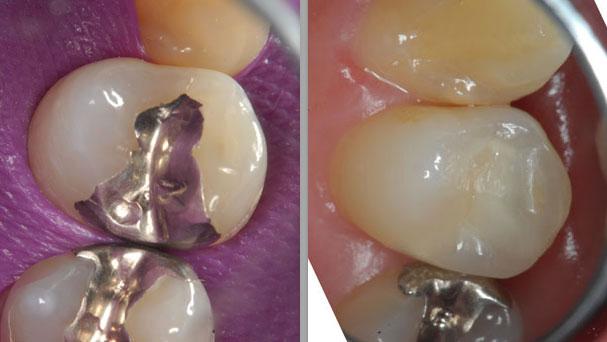 抜かずに過剰品質で一本の歯を守る。 東京顕微鏡歯科治療総合診療_e0004468_18344077.jpg