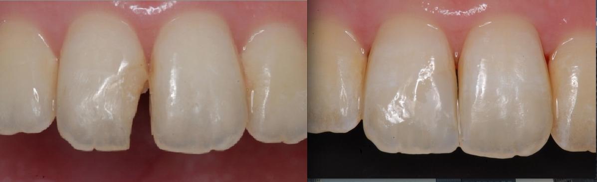抜かずに過剰品質で一本の歯を守る。 東京顕微鏡歯科治療総合診療_e0004468_23182941.png