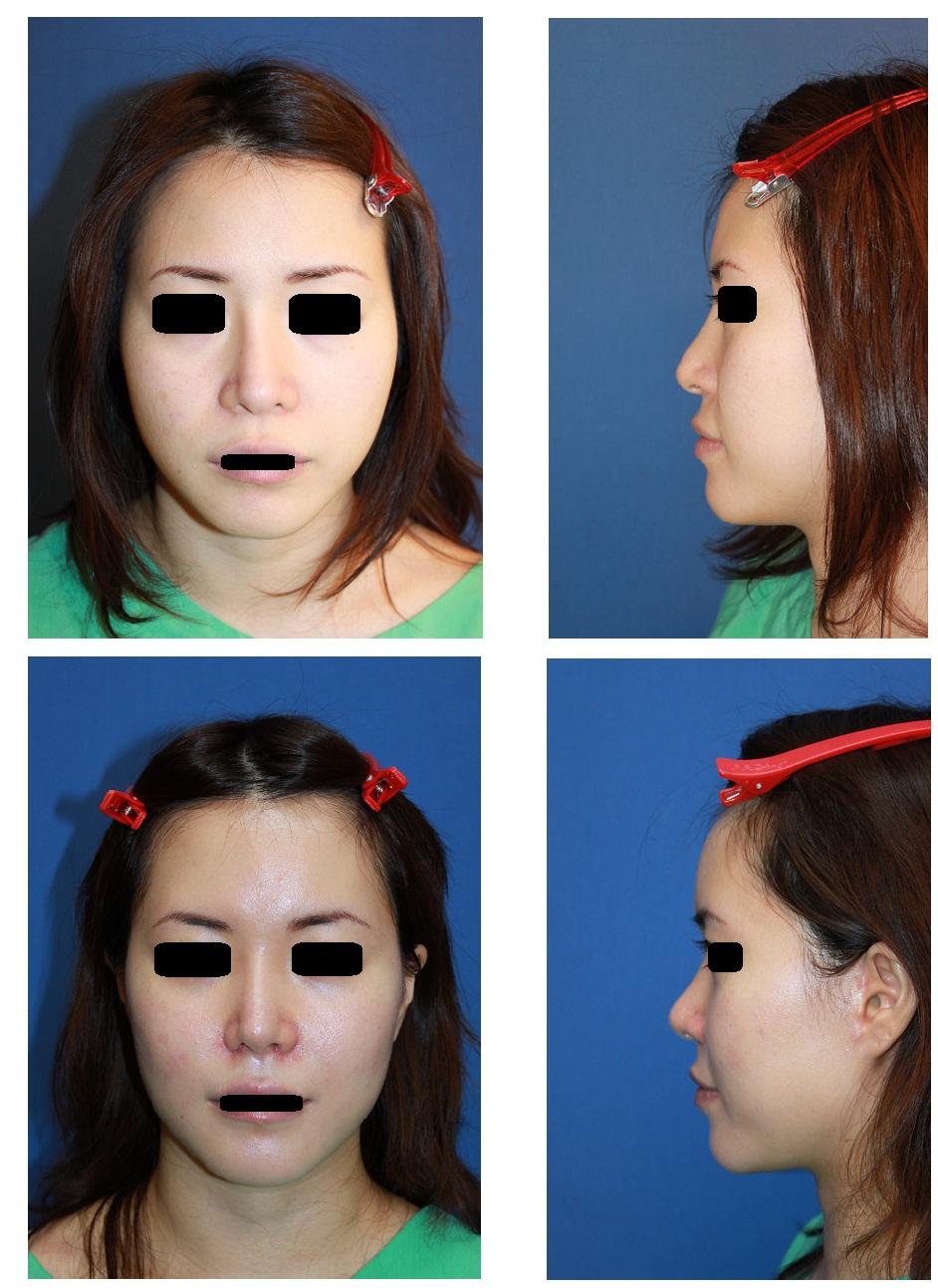 額脂肪移植、 小鼻縮小術、 他院I型鼻プロテーゼ入れ替え術_d0092965_0175621.jpg