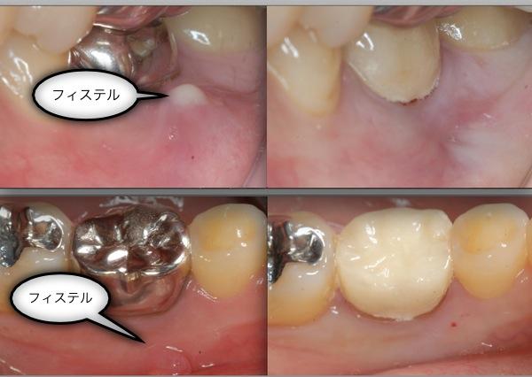 抜かずに過剰品質で一本の歯を守る。 東京顕微鏡歯科治療総合診療_e0004468_7211815.jpg