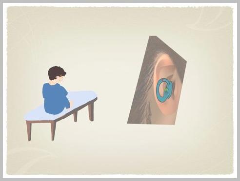 良性発作性頭位めまい症(BPPV)の理学療法_e0084756_23404024.jpg