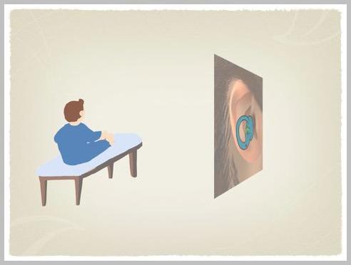 良性発作性頭位めまい症(BPPV)の理学療法_e0084756_2341196.jpg