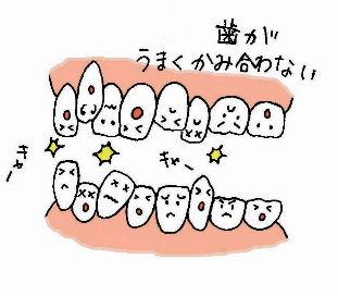 歯ぎしり_b0226176_19425825.jpg