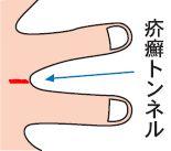 疥癬の治療_e0156318_17251739.jpg