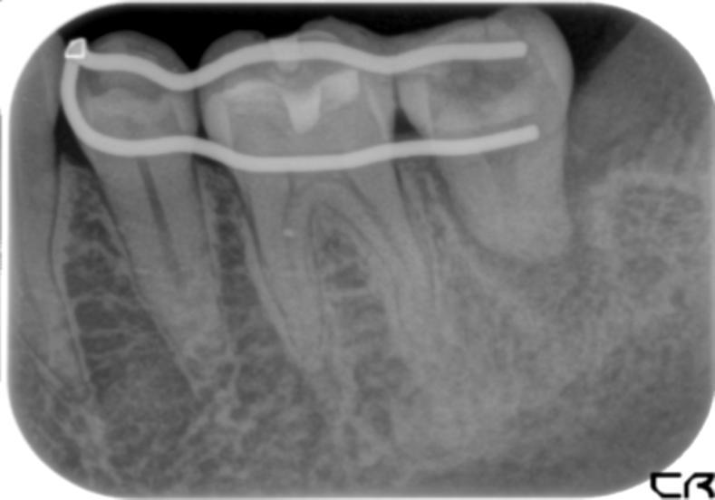 虫歯治療の奥の手 - 移植という選択 -_b0119466_2341257.jpg