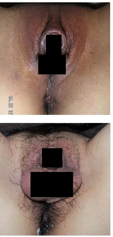 性同一性障害の患者さん  他院睾丸インプラント留置修正術_d0092965_2320182.jpg
