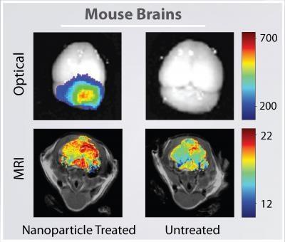 日焼け止めなどに含まれる酸化チタンナノ粒子 脳への毒素侵入を防ぐ関門を破壊 フランス原子力庁の実験_c0139575_19153811.jpg