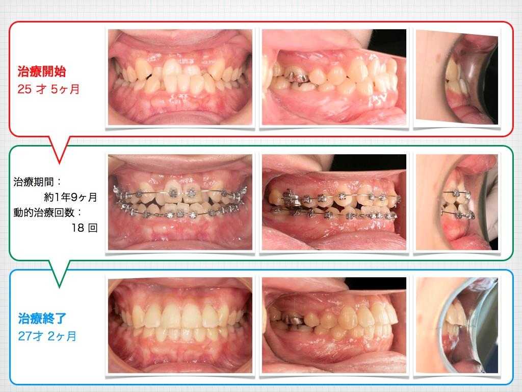 治療例:A・Aさん 高度な骨格性の下顎前突による反対咬合と叢生の治療例_e0025661_10123595.jpg