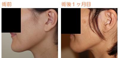 輪郭手術(エラ・バッカル・顎) 術後1ヶ月目_c0193771_9343875.jpg