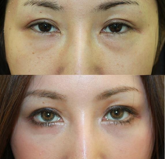 たれ目形成術、 目の下の脂肪取り(下眼瞼脂肪除去) :脇山先生_d0092965_18225143.jpg