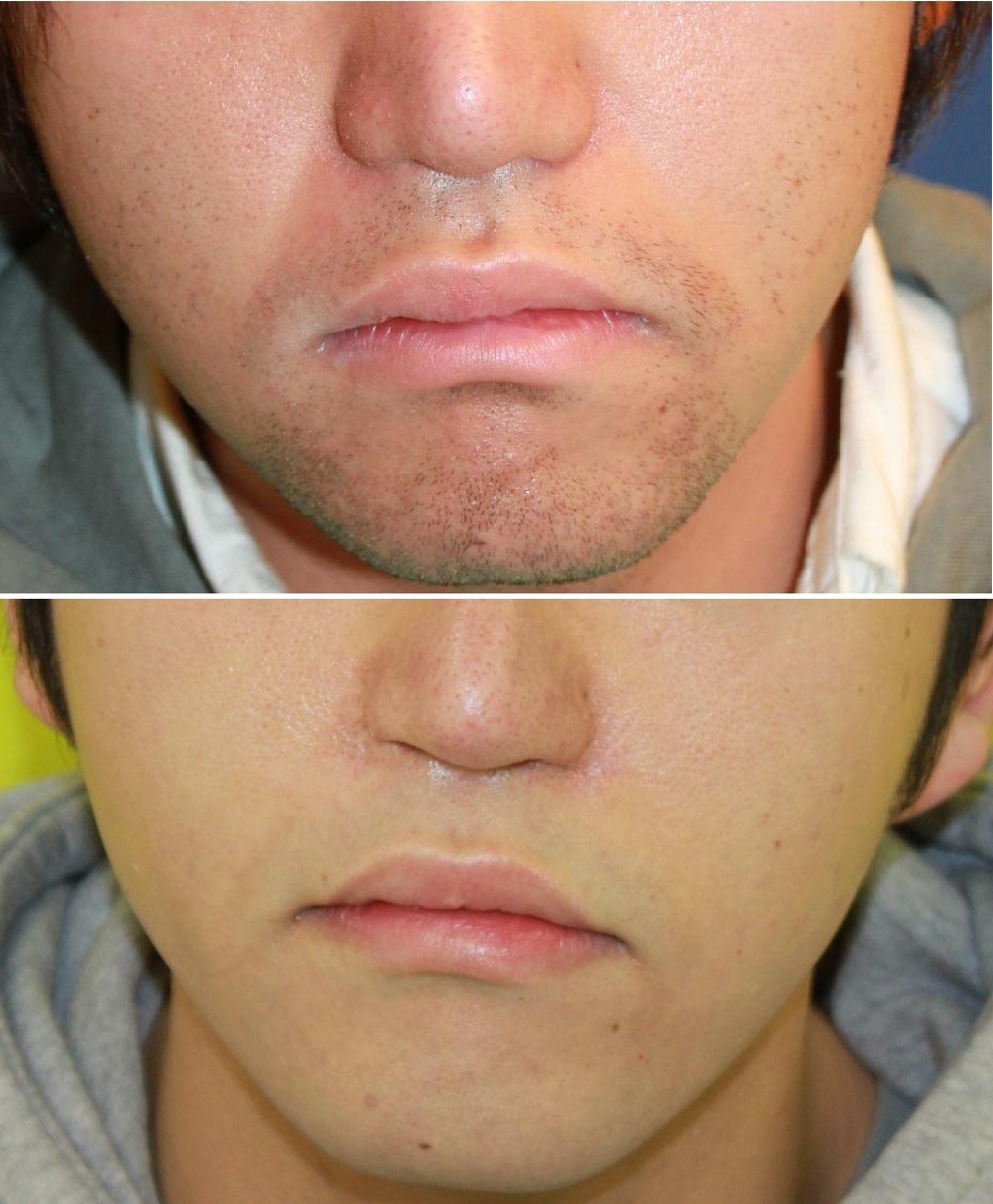 口周り 脱毛 (男性) , 小鼻肉厚減幅術 , 鼻孔縁挙上, ほうれい線プロテーゼ留置術_d0092965_18512685.jpg