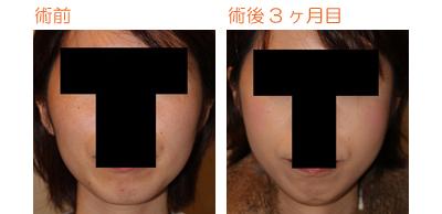 頬骨削り(再構築法) 術後3ヶ月目_c0193771_104179.jpg