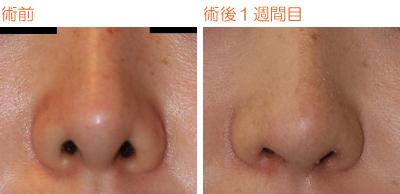 鼻孔縁下降術 術後1週間目_c0193771_10314822.jpg