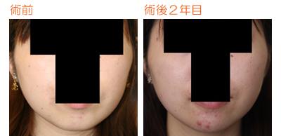 顎プロテーゼ 術後2年目_c0193771_1423791.jpg