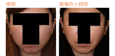 頬骨削り(再構築法) 術後6ヶ月目_c0193771_9383775.jpg
