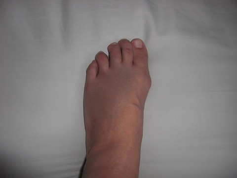 足の指、骨折 : SAIKUNGERのブログ