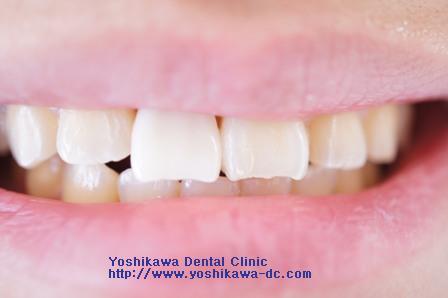 上顎前歯にインプラントの仮歯_b0190560_1025193.jpg