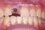 上顎前歯にインプラントの仮歯_b0190560_106916.jpg