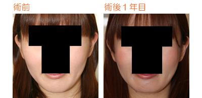 頬骨削り(再構築法)+顎削り(オトガイ骨切り) 術後1年目_c0193771_9164988.jpg