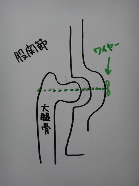 gaga  /   X-rays_b0195093_8173420.jpg