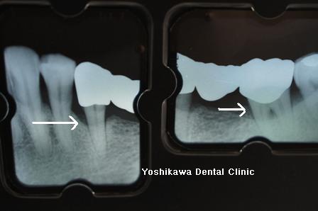 不適合なクラウン・ブリッジが骨・歯周組織を破壊する_b0190560_723956.jpg