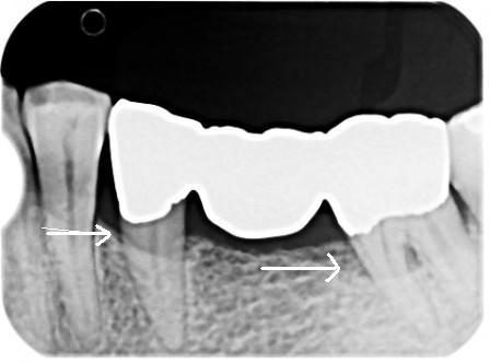 不適合なクラウン・ブリッジが骨・歯周組織を破壊する_b0190560_733772.jpg