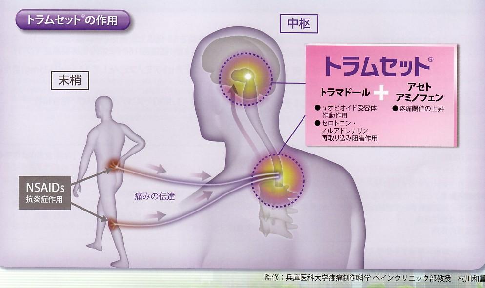 進化する痛みの治療_b0102247_22441830.jpg