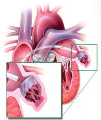 神様が心臓に残した2つのいたずらー内胸動脈と左心耳_a0119856_2318832.jpg
