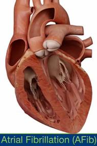 心房細動時の心臓の動きを動画で見られるiPhone, iPad向けアプリ_a0119856_2362369.jpg