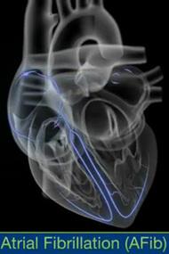 心房細動時の心臓の動きを動画で見られるiPhone, iPad向けアプリ_a0119856_2363893.jpg