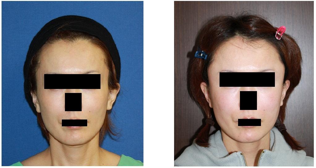 こめかみプロテーゼ留置術、 頬脂肪移植_d0092965_21565287.jpg