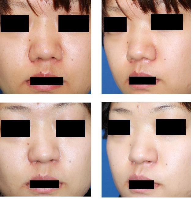 鼻孔縁拳上術術後約半年_d0092965_20392428.jpg