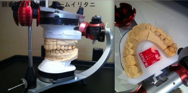 顕微鏡歯科治療 虫歯の治療と咬合 東京職人歯医者_e0004468_132414100.jpg