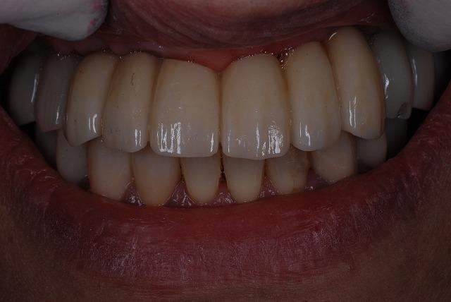 歯科技工 一般の方には判りづらいと思いますが_a0071724_19375092.jpg