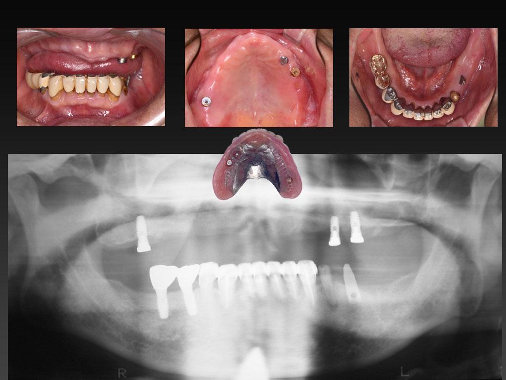 インプラントで乱された欠損歯列_d0148776_10202093.jpg