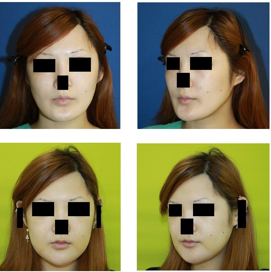 顎先骨切術 術後 1週間_d0092965_23551158.jpg