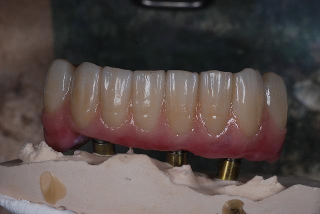 歯科技工 一般の方には判りづらいと思いますが_a0071724_20201429.jpg