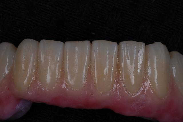 歯科技工 一般の方には判りづらいと思いますが_a0071724_2022464.jpg