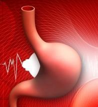 オピオイドによる嘔気・嘔吐に対する薬剤_e0156318_14351123.jpg