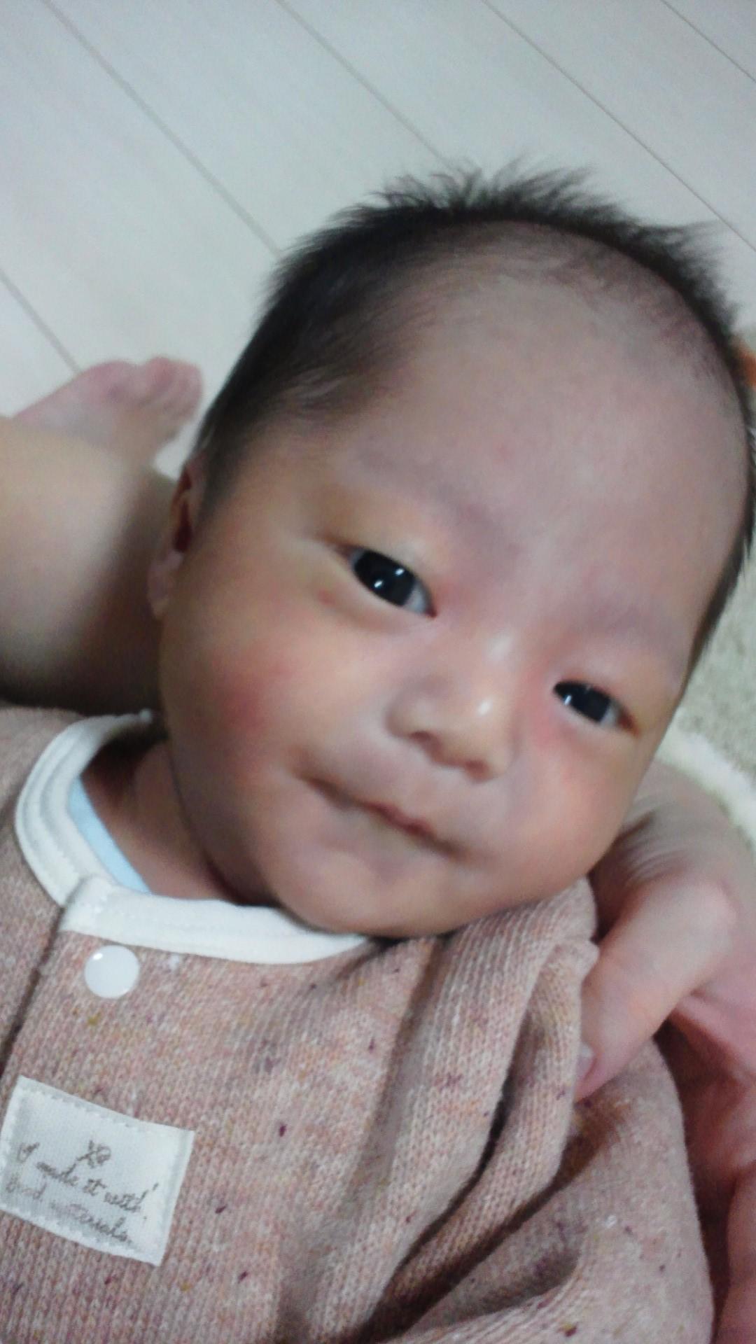 乳児健診(生後1ヵ月1日目)_a0267942_23221456.jpg