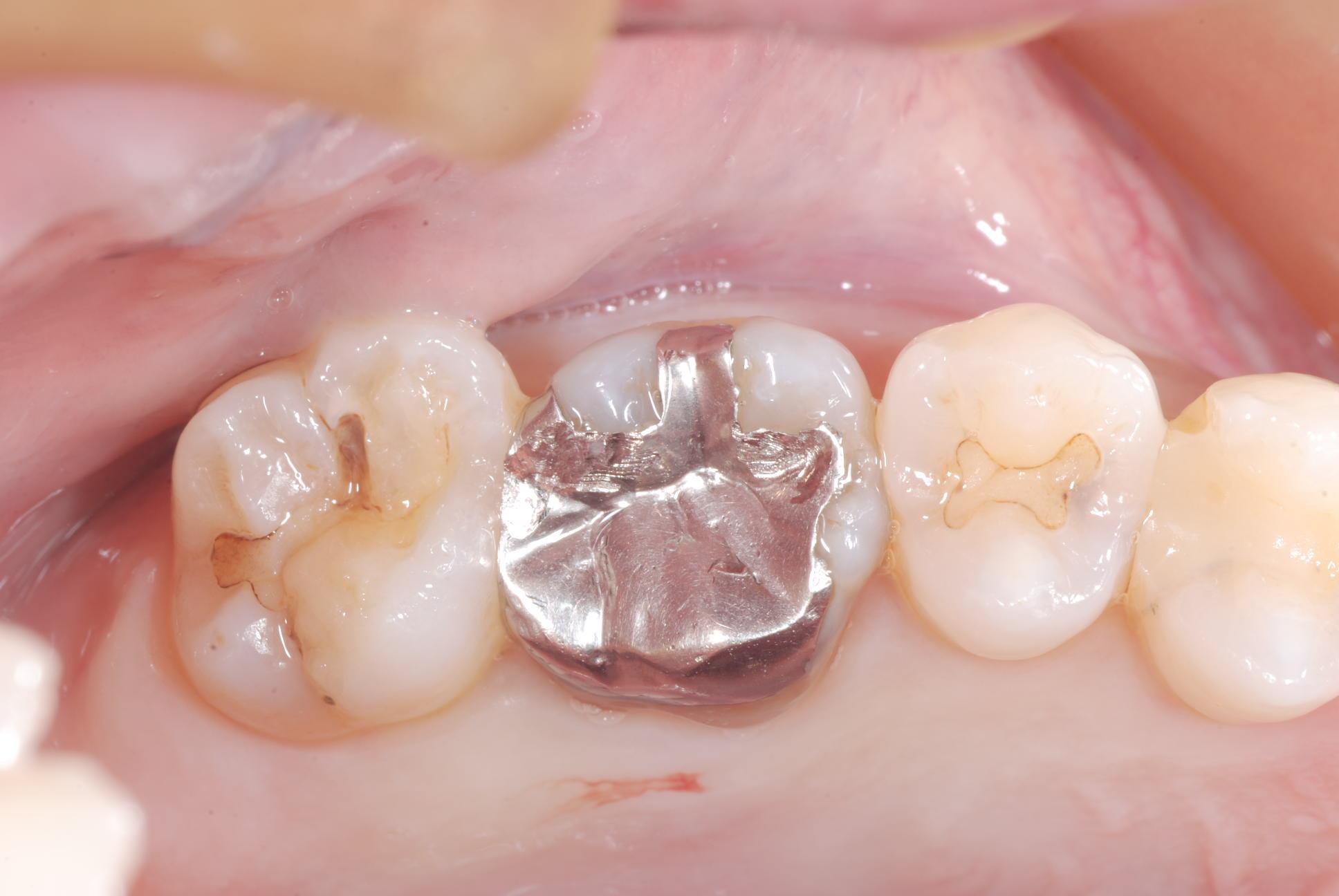 2012.05.02 象牙質歯髄複合体による感染防御_b0112648_2052088.jpg