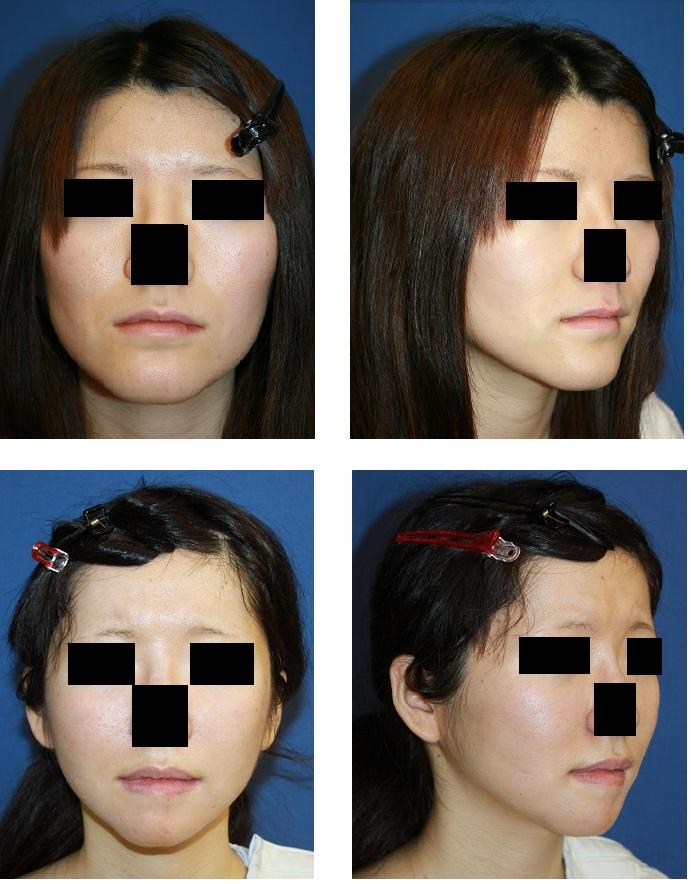 頬骨アーチリダクション、頬骨前方削り、スティック骨切術、ミッドフェイスリフト、顎先骨切術_d0092965_19494982.jpg