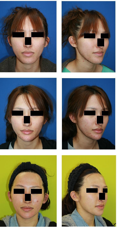 顎先骨切術  術後2年_d0092965_2222248.jpg