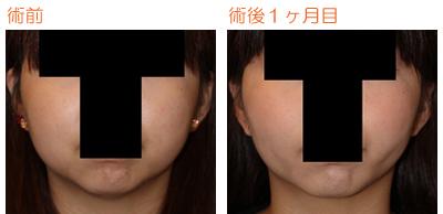 頬の脂肪吸引 術後4ヶ月目_c0193771_10403843.jpg