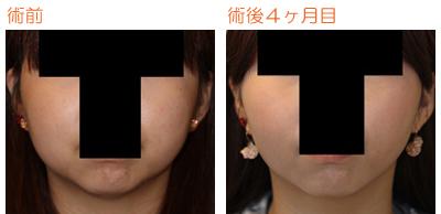 頬の脂肪吸引 術後4ヶ月目_c0193771_10422045.jpg