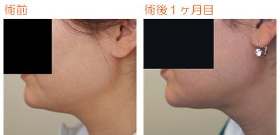 顎の脂肪吸引 術後1ヶ月目_c0193771_9202880.jpg