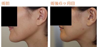 輪郭手術(エラ・バッカル・顎) 術後6ヶ月目_c0193771_10284429.jpg