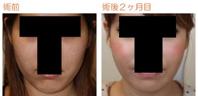 頬骨削り(再構築法)+顎削り(オトガイ骨切り)+バッカルファット摘出 術後2ヶ月目_c0193771_9463242.jpg