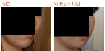 頬骨削り(再構築法)+顎削り(オトガイ骨切り)+バッカルファット摘出 術後2ヶ月目_c0193771_9464352.jpg